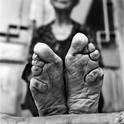 Femme aux pieds bandés